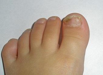 Грибок ногтей на ногах ребенка чем лечить