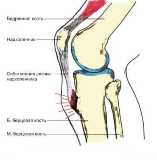Маленькая шишка на коленке. Причины и лечение деформации коленного ...