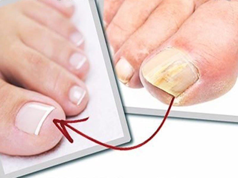 Креолин от грибка ногтей: инструкция по применению