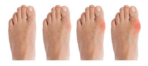 gikt i foten symtom
