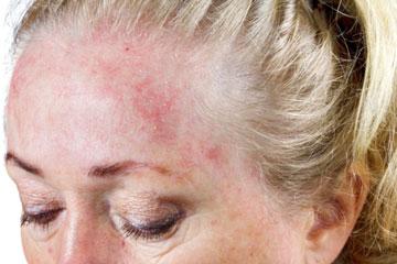 Шелушится кожа на голове у взрослого: что делать