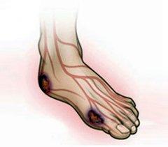 Почему при ходьбе немеет левая нога. Почему это может случиться ...