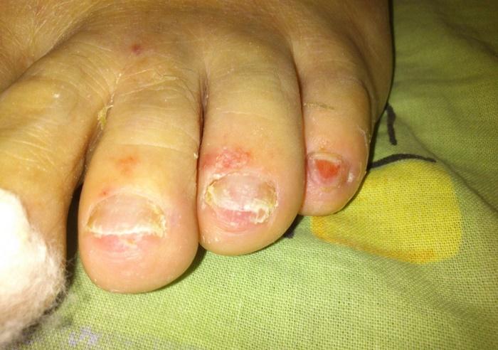 Лечение грибка ногтей после удаления ногтевой пластины