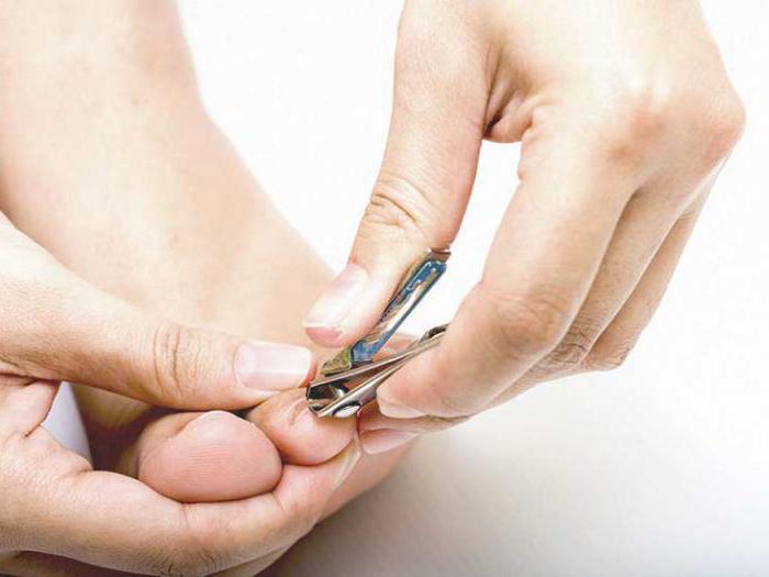 Лечение ногтевой пластины после удаления